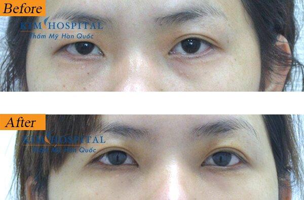 Cách hô biến đôi mắt to mắt nhỏ thành hai mí cân đối (2)